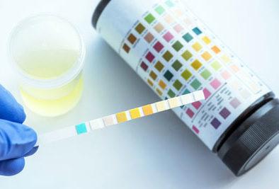 GDT-Schnittstelle für die Analyticon Biotechnologies AG